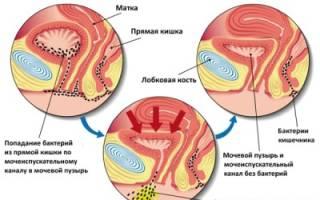 Обзор лучших антибиотиков при лечение цистита у женщин