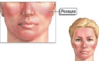 Причины появления розацеи на лице, симптомы и лечение