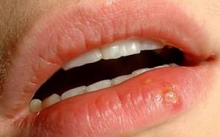 Опасность герпеса на губах при беременности и его лечение