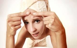 Причины и лечение воспаленных прыщей на лице