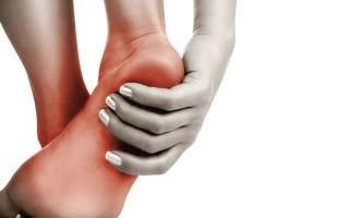 Причины и лечение боли в пятке