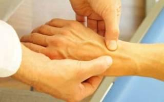 Симптомы и лечение болезни Стилла у взрослых и детей