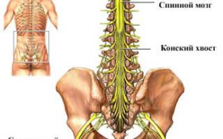 Симптомы заболевания и лечение синдрома конского хвоста