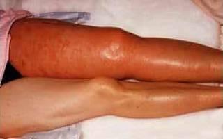 Как определить и вылечить реактивный артрит