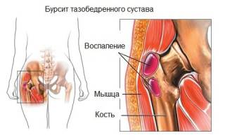 Вертельный бурсит тазобедренного сустава: причины, симптомы и методы лечения