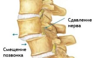 Симптомы и лечение листеза позвонков шейного и поясничного отделов позвоночника