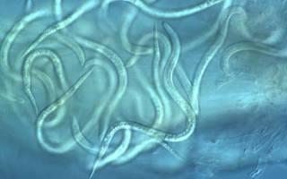 Какие нематоды паразитируют в организме человека?