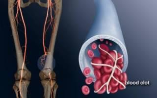 Причины, симптомы и лечение тромбоза глубоких вен нижних конечностей
