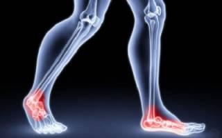 Причины ночных болевых ощущений в ногах