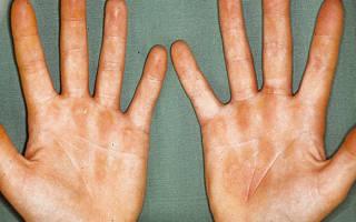 Дерматит аллергический на руках: причины, симптомы и методы лечения