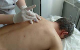 Эффективные уколы при боли в спине в области поясницы
