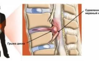 Какие упражнения для спины могут помочь при грыжах позвоночника?
