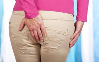Причины и лечение анальной трещины