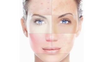 Как правильно выбрать тональный крем для комбинированной кожи