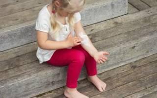 Как лечить дерматит в домашних условиях