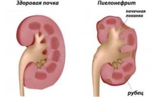 Симптомы и медикаментозное лечение воспаление почек