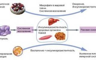 Причины, симптомы и лечение инсулинорезистентности