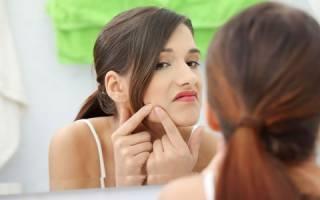Как быстро избавиться от черных точек на носу