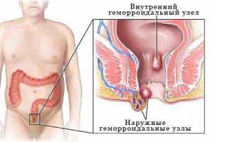 Ректальные гомеопатические свечи от геморроя