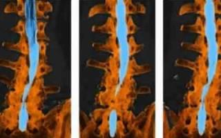 Что такое миелография позвоночника и когда назначается данная диагностика?