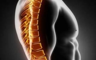 Распространенный остеохондроз позвоночника: признаки болезни и методы лечения