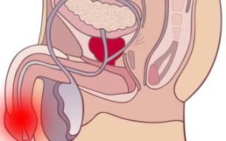 Симптомы развития и лечение препаратами уретрита у мужчин