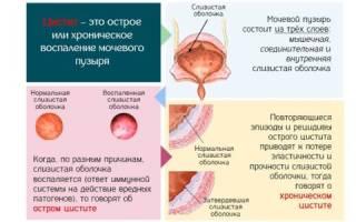Препараты от цистита у детей