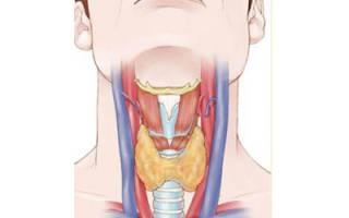 Чем характеризуется аутоиммунное заболевание щитовидной железы