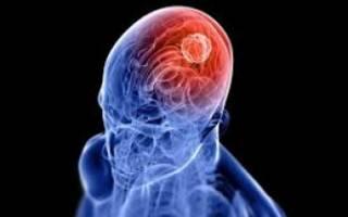 Признаки, особенности течения и терапия менингоэнцефалита