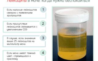 Что делать при обнаружении бактерий и повышенного уровня лейкоцитов в моче у ребенка?