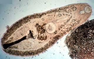 Что такое сосальщики трематоды?