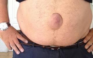 Причины, симптомы и лечение пупочной грыжи у мужчин