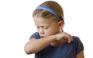 От чего лающий кашель у ребенка?