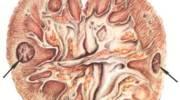 Основные симптомы и методы лечения острого гломерулонефрита у детей