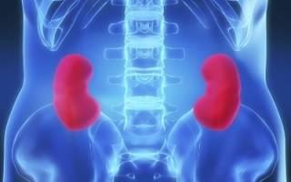 Признаки и лечение хронического и острого пиелонефрита, код по МКБ 10