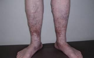 Симптоматика и лечение посттромбофлебитического синдрома