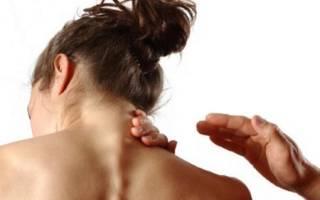 Причины появления и лечебные упражнения от «вдовьего горба»