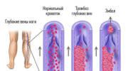 Причины и лечение илеофеморального тромбоза нижних конечностей