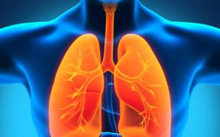 Симптомы и лечение грибковой пневмонии