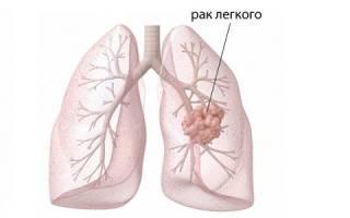 Рак легких: основные причины возникновения