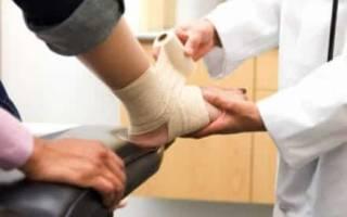 Симптомы, лечение и сроки восстановления разрыва связок голеностопного сустава