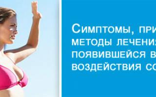 Причины, симптомы и методы лечения солнечной крапивницы