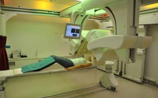 Исследование щитовидной железы с помощью сцинтиграфии