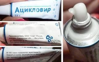 Признанное лекарство от герпеса – мазь и таблетки Ацикловир