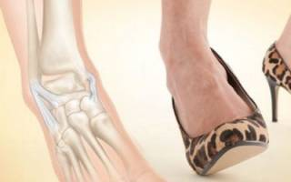 Как самостоятельно лечить растяжение связок голеностопного сустава на дому?