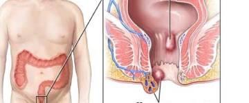 Что представляет собой тромбоз геморроидального узла: лечение и причины патологии