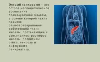 Лечение острого панкреатита амбулаторно и в стационаре