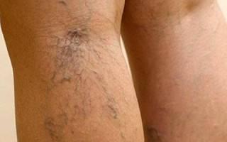 Признаки и лечение варикозной болезни нижних конечностей, код по МКБ 10