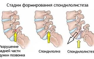 Симптомы, виды и лечение спондилолиза