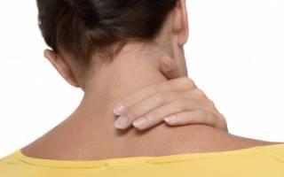 Радикулит шейного отдела позвоночника — симптомы, диагностика, лечение